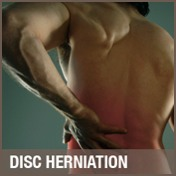Disc Herniation Treatment, Chiropractor Co. Antrim